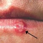 rijesite se herpesa za tren oka koristeci sastojke koje svi imaju u frizideru