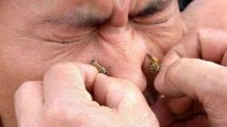 Nećete vjerovati šta se sve liječi pčelinjim ubodom