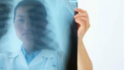Otkriveno šta izaziva rak pluća: Provjerite prijeti li i vama!