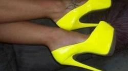 Visoka potpetica može prouzrokovati trajne posljedice na razvoj i strukturu stopala