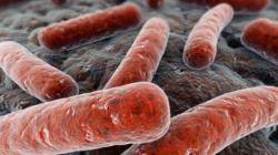 """Svijet bi se mogao suočiti s """"gotovo neizlječivom"""" tuberkulozom"""