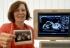 Doktori: Baka koja je u 65. godini rodila četvorke ugrozila dugoročno zdravlje potomstva