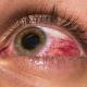 PRIČE ZA NAJEŽITI SE: Doktor otkrio šta je sve odstranjivao ljudima iz očiju