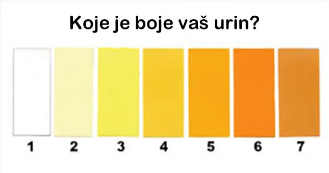 boja urina