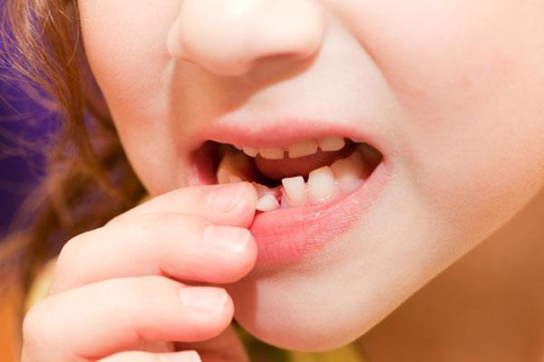 Mliječni zubi - Uspesnazena.com