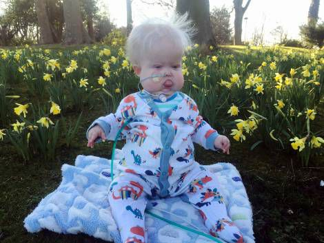 Ewan Knox was born with a very rare genetic condition called Hallerman-Streiff Syndrome but sadly died after nearly two years: SUBMITTED S82104.jpg