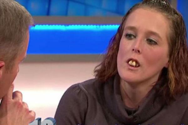 svi su je ismijavali zbog njenih ruznih krivih zuba no cekajte da vidite kako izgleda danas