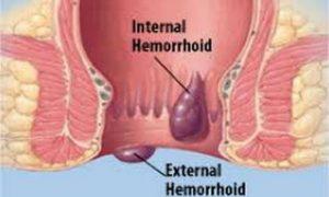 Hemoroidi - Lijekizprirode.com