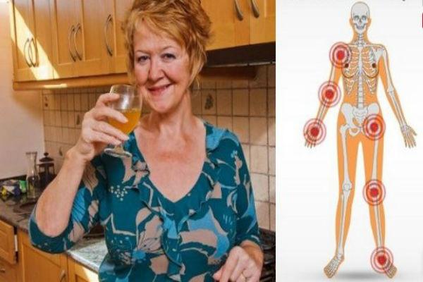 Artritis - Megagiga.info