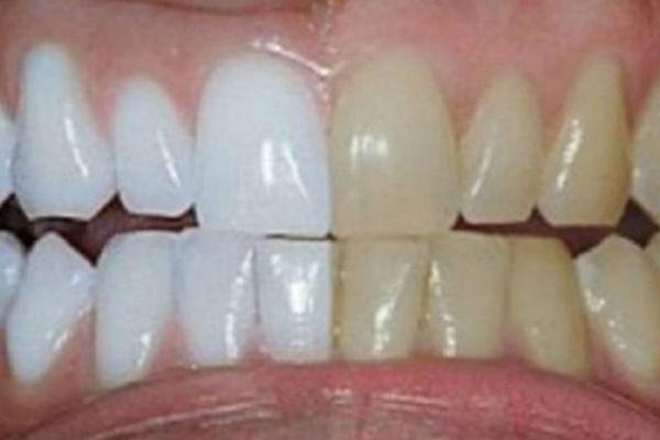 blistav i zdrav osmijeh i bez odlaska zubaru izbijelite zube i izlijecite karijes kod kuce