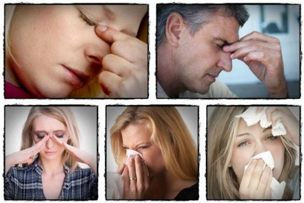3 sigurna znaka da imate alergiju na hranu insekte ili polen koje tijelo ne moze da istrpi