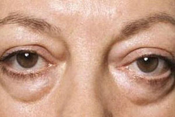 Na licu piše baš sve: Znate li od čega bolujete ako su vam oči podbuhle? –  Haber.ba