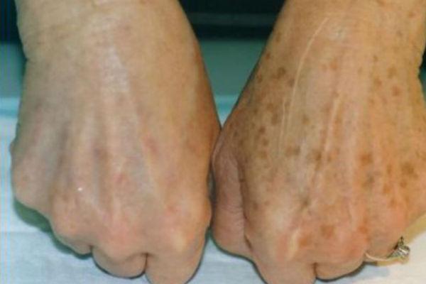 Slikovni rezultat za staracke mrlje ruke