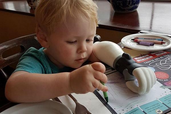 ovom je djecaku amputirana ruka nakon rodenja pa mu je tata s 3d printerom napravio novu