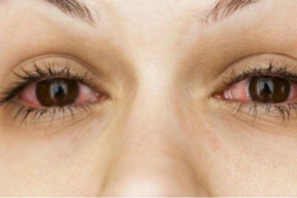 da li su vam cesto crvene oci evo na koju bolest upucuje crvenilo u oku