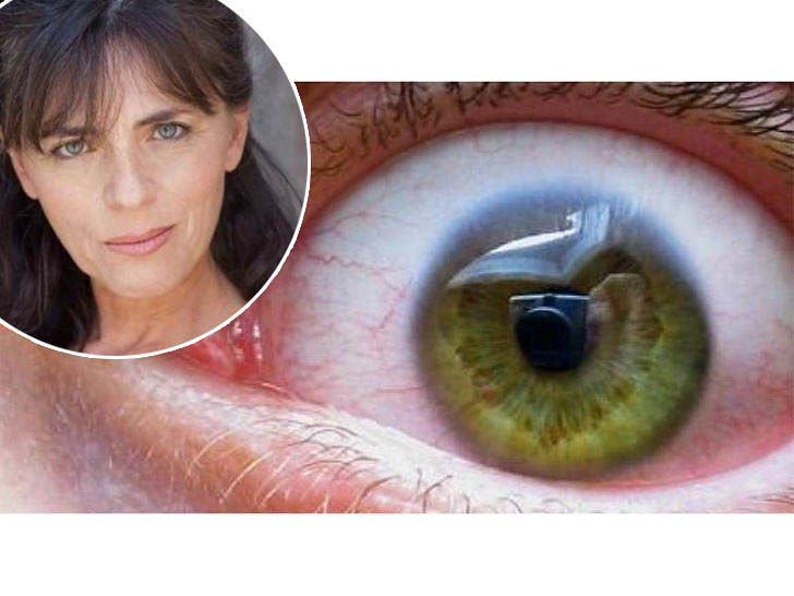 Ovo su simptomi bolesti od koje je umrla Mira Furlan: U očima se mogu vidjeti njeni 1. znakovi!